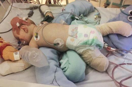 Cảm phục nghị lực sống của cậu bé bị mất hết tay chân