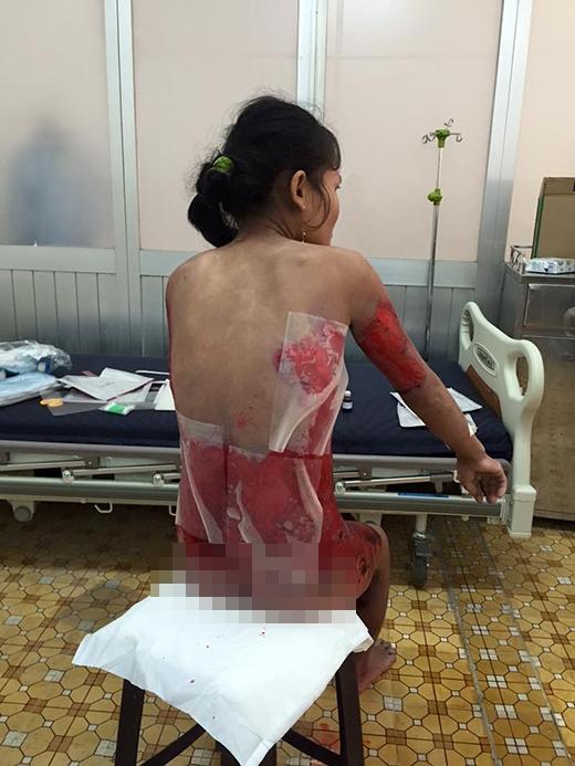 Hình ảnh vết thương trên người chị Bích khiến nhiều người xót xa
