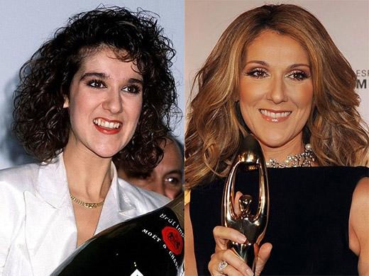 Nụ cười của huyền thoại âm nhạc Celine Dion duyên dáng hơn khi cô làm lại răng.
