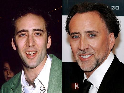 Nicolas Cage trông bảnh bao hơn hẳn khi anh tút tát lại hàm răng ố vàng của mình.