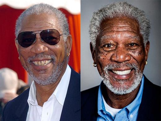 Nam diễn viên gạo cội Morgan Freeman đã tự tin hơn với nụ cười của mình sau khi làm lại toàn bộ hàm răng ố vàng và không ngay hàng thẳng lối.