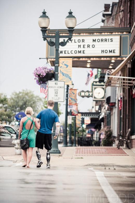Nhờ đôi chân và cánh tay giả, giờ đâyTaylor đã có thể cùng bạn gái đi dạo phố hay hẹn hò.