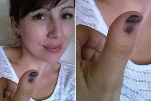 Bất ngờ phát hiện bệnh ung thư nhờ móng tay thâm