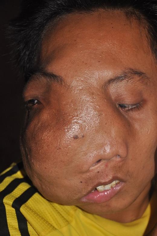 Đã 16 năm anh Thuận mang khối u khổng lồ trên khuôn mặt.