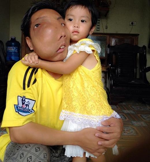Anh đã lập gia đình và có con gái năm nay 4 tuổi.