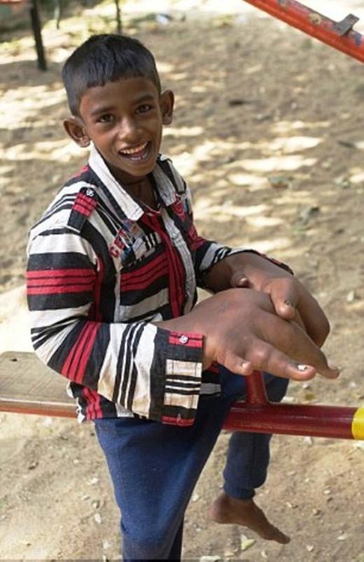 Cậu bé lớn lên, tay cũng lớn theo và ngày càng trở nên mất cân đối với trọng lượng cơ thể.