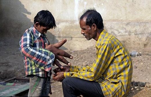 Người cha cho biết, từ khi sinh ra, đôi tay con trai đã có hình thù kì dị khác hẳn với những đứa trẻ đồng trang lứa.