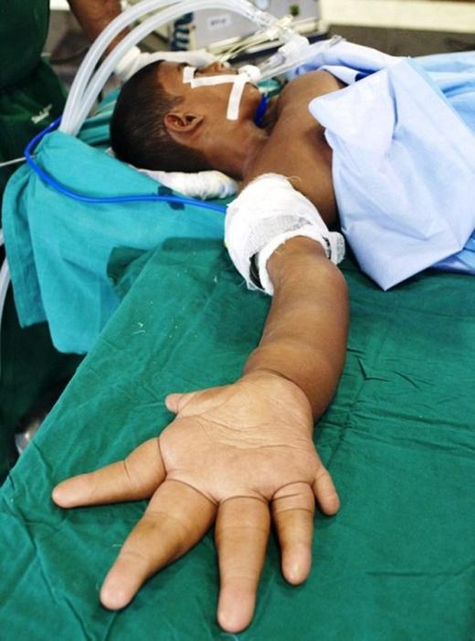Câu chuyện về cuộc sống khốn cùng của Kaleem sau khi được đăng tải trên báo đã lay động trái tim hàng triệu người. Cậu đang được các chuyên gia y tế ở miền Nam Ấn Độ giúp đỡ phẫu thuật để giảm kích thước của đôi bàn tay.
