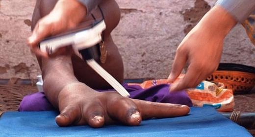 Các chuyên gia đang đo đạc kích thước tay trước khi tiến hành phẫu thuật.