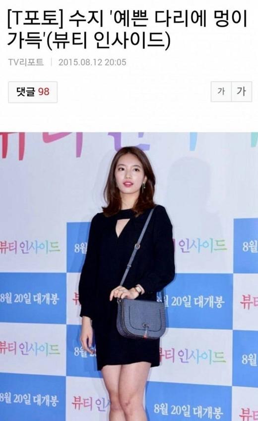 Bài báo nói về vết bầm của Suzy