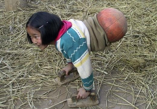 """Cảm phục nghị lực của """"cô bé bóng rổ"""" không chân"""