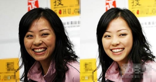 Trương Lương Dĩnh với gương mặt già nua hơn cả chục tuổi.