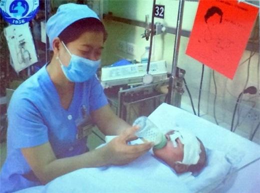 Các bác sĩ đang chăm sóc cho bé Phát