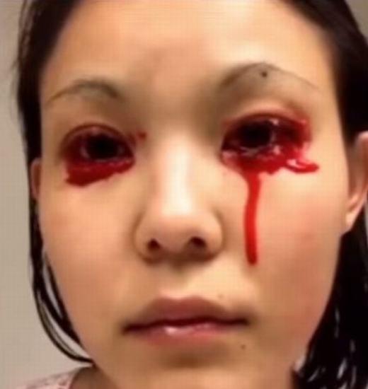 Cách đây 2 năm, cô liên tục khóc ra máu.