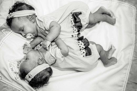 Ấn tượng mạnh chùm ảnh cặp sinh đôi dính liền chỉ vừa 2 tháng tuổi