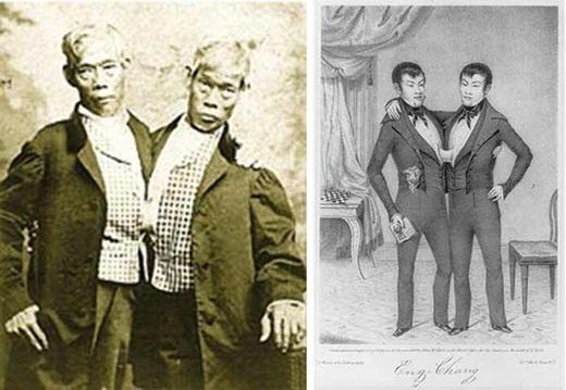 Cặp sinh đôi dính liền nổi tiếng Eng và Chang Bunker.