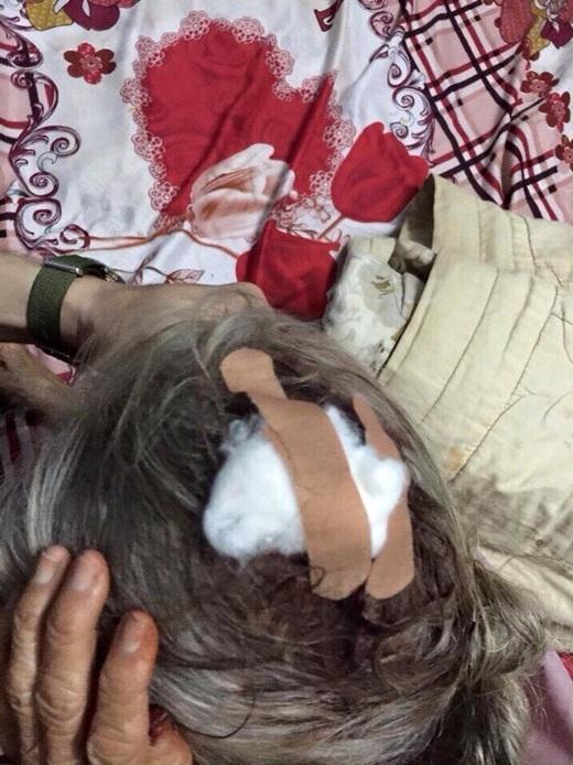 Vết thương trên đầu của bà cụ