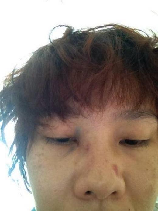 Dương Yến Ngọc tiếp tục bị chồng hành hung dã man - Tin sao Viet - Tin tuc sao Viet - Scandal sao Viet - Tin tuc cua Sao - Tin cua Sao