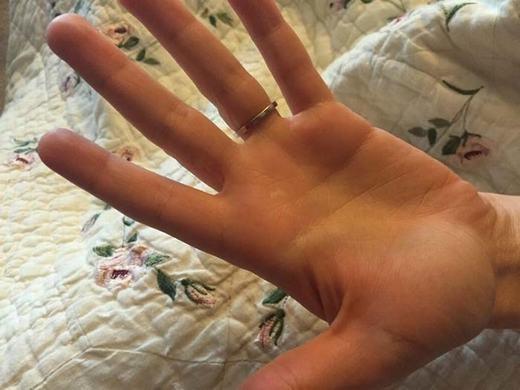 Hiện bàn tay của cô gái đã khỏi hoàn toàn.