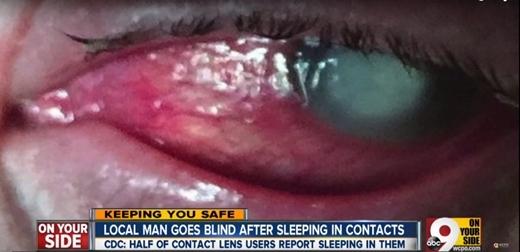Đeo kính áp tròng đi ngủ, người đàn ông bị mù vĩnh viễn