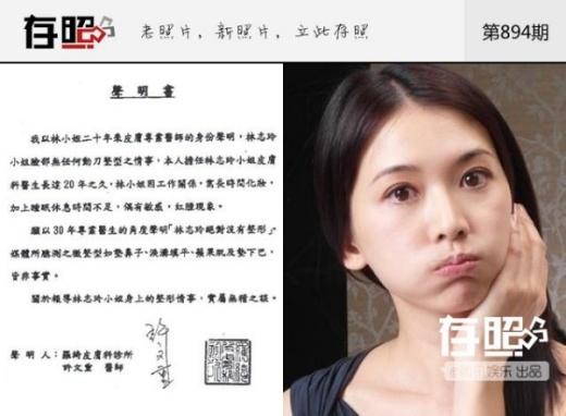 Lâm Chí Linh công khai xác nhận từ viện da liễu để chứng thực cô không dao kéo.
