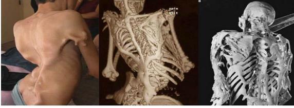 Sởn gai ốc với 10 căn bệnh kì lạ trên thế giới