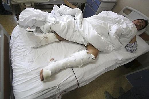 Nhặt đồ chơi (Bắc Kinh, Trung Quốc): Tháng 1/2009, một du khách ở sở thú Bắc Kinh đã nhảy vào chuồng gấu trúc để nhặt món đồ chơi con trai đánh rơi. Anh bị con gấu trúc nặng hơn 100 kg tên Gu Gu cắn vào chân. Nhân viên sở thú đã phải dùng dụng cụ để Gu Gu nhả chân người đàn ông ra. Trước đó, Gu Gu cũng đã tấn công hai người vào chuồng mình. Ảnh: Nydailynews.