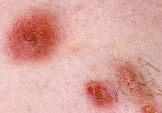 Rùng mình những căn bệnh thường gặp về da trong mùa mưa