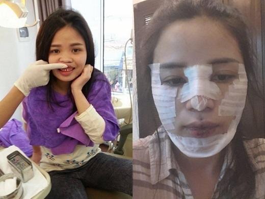 Nữ thạc sĩ chia sẻ hình ảnh phẫu thuật thẩm mĩ toàn bộ gương mặt khiến dân mạng xôn xao. (Nguồn: Facebook)