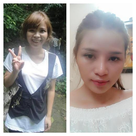 Nhan sắc của Hương trước và sau nhiều lần phẫu thuật thẩm mĩ. (Nguồn: Facebook)