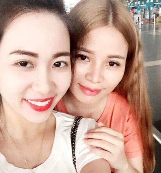 Sau phẫu thuật, Hương được nhận xét là xinh đẹp giống em gái. (Nguồn: Facebook)