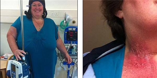 Ung thư vú vì để điện thoại trong áo ngực?