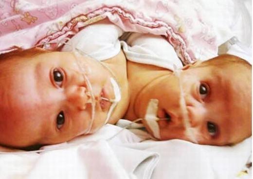 Cặp song sinh của vợ chồng ở phía bắc Illinois, Mỹ này cực kì đặc biệt bởi hai bé sinh vào 2 năm khác nhau: bé đầu cất tiếng tiếng khóc chào đời vào phút cuối cùng của năm 2010 và bé thứ hai ra đời ở phút đầu tiên của năm 2011. (Ảnh: Internet)