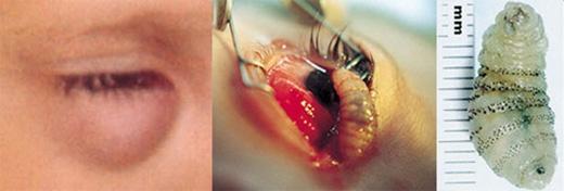 Một cậu bé người Honduras đã cảm thấy rất khó chịu nhưcó vật gì đóở trong mắt. Khi đến khám, bác sĩ đãphát hiện mộtấu trùng của loài ruồi trâu sống kí sinh và đẻ trứng trong hốc mắt cậu bé. Ngay lập tức ấu trùng đã được phẫu thuật cắt bỏ.
