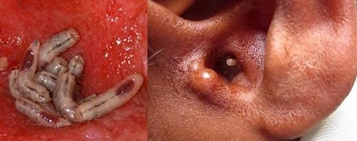 Một người phụ nữ 92 tuổi đã được phát hiện có 57 con giòi bên trong lỗ tai. Các bác sĩ cho rằng, một con ruồi vô tình đã chui vào tai bà cụ và đẻ trứng, sau đó nở thành giòi 2 - 3 ngày sau khi chúng được phát hiện.