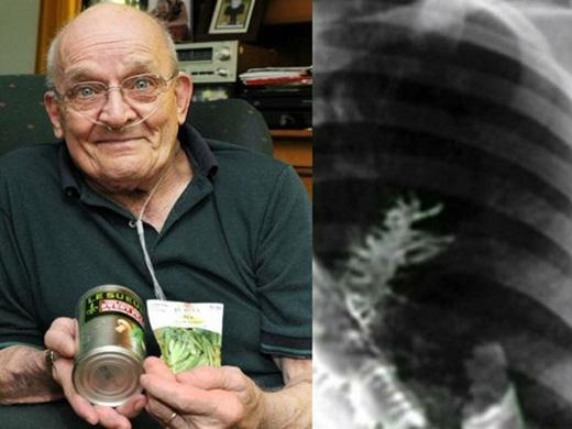 Ông Ronan Svedan ở bang Massachusetts, Mĩ đã trải qua những cơn ho dữ dội khiến ông phải đến khám bác sĩ. Kết quả chụp X-quang khiến các bác sĩ và ông Ronan hết sức bất ngờ khi phát hiện một cây đậu nhỏ xíu đang phát triển bên trong phổi của ông.