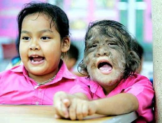 Người mắc chứng Ambras sẽ mọc tóc trên khắp cơ thể. Ảnh: Blogspot.com