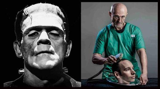 Sốc: Chuẩn bị có ca ghép đầu người đầu tiên trên thế giới
