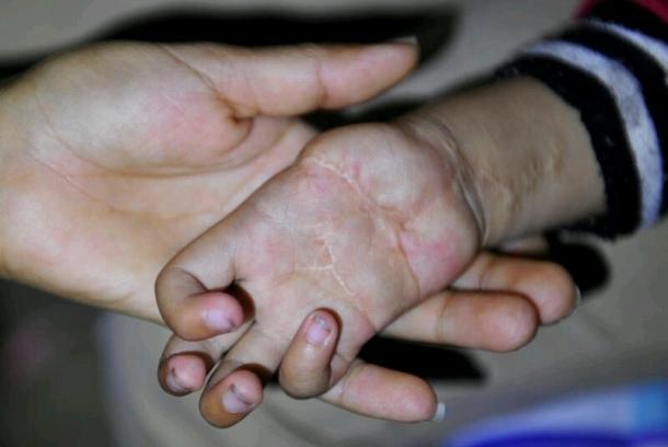 Phúc Phúcbị người cha tâm thần cắtmất ngón tay cái .