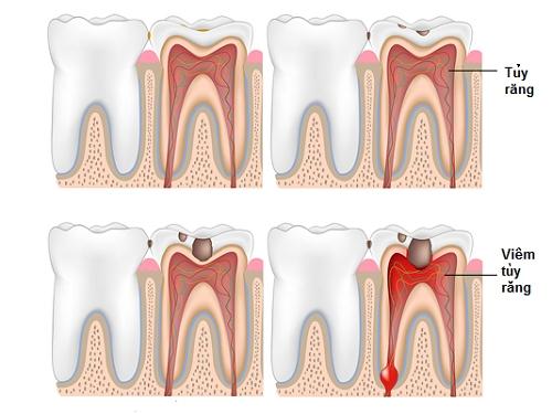 Rùng mình trước những căn bệnh đáng sợ về răng