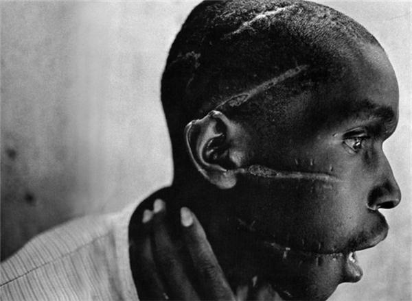 Một người đàn ông trẻ tuổi từ Rwanda cho thấy những vết sẹo khi còn trong một trại tử thần.