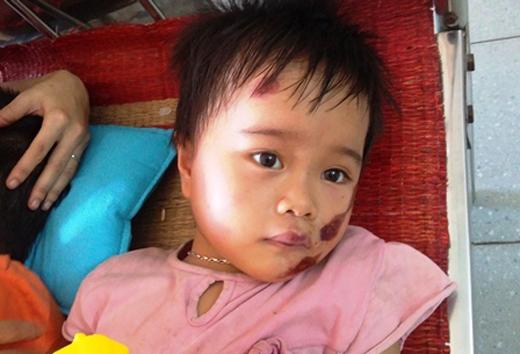 Cháu Nguyễn Thị Mai Thanh (4 tuổi) mặt cũng sưng húp đang rơm rớm nước mắt vì đau.
