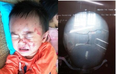 Cháu là Nguyễn Thị Thanh Hà (2 tuổi) bị rạn hai bên hộp sọ có nguy cơ bị tụ máu não.