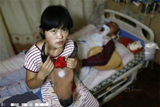 Đau lòng cô bé 15 tuổi làm trâu bò để kiếm tiền cứu cha