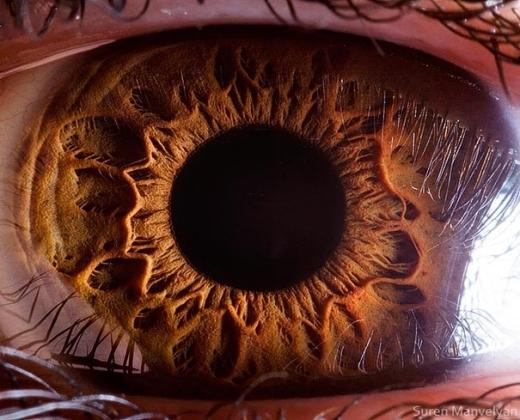 Mắt của chúng ta được cấu thành bởi nhiều thành phần khác nhau. Trong đó, những phần ta nhìn thấy được là giác mạc, kết mạc, vòng ngoài, đồng tử, và mống mắt. (Ảnh: Suren Manvelyan)