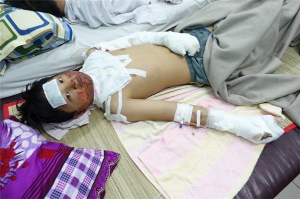 Em Nguyễn Xuân Thành bị mẹ đốt phỏng độ 4 - Ảnh: M.Vinh
