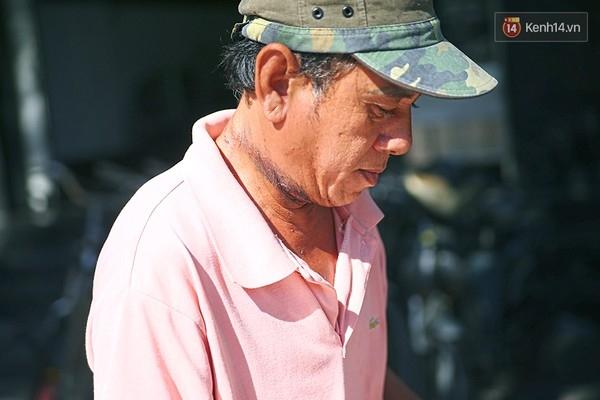 Vết hằn trên cổ ông vẫn còn rất rõ và gây đau rát mỗi ngày.