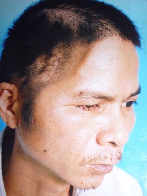 Sau tai nạn, anh Thích mất 1/3 hộp sọ, di chứng kéo dài đến nay khiến anh bị ảnh hưởng thần kinh và khả năng vận động
