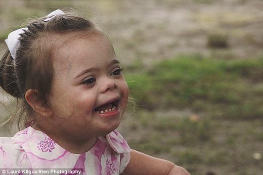 Cha mẹ bé Aliyah cho biết rằng cô bé rất hài hước, hạnh phúc và thường xuyên cười. (Ảnh:Laura Kilgus)
