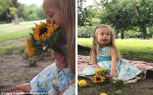 """""""Tan chảy"""" trước khoảnh khắc yêu-đời-quên-ngày-tháng của những em bé bị bệnh Down"""